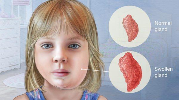 Outbreak Of Mum... Mumps Cdc